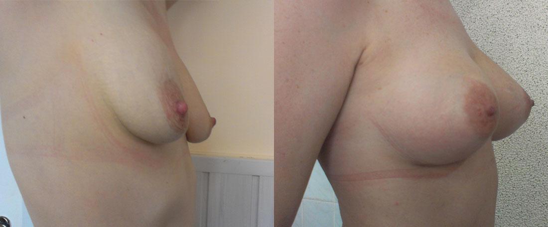 Эндопротезирование груди в Киеве
