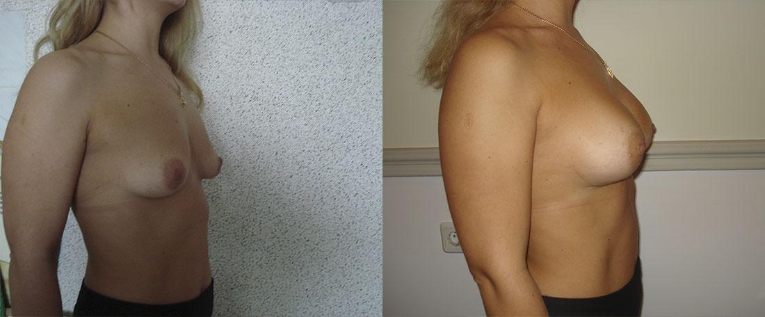 Увеличение грудной железы