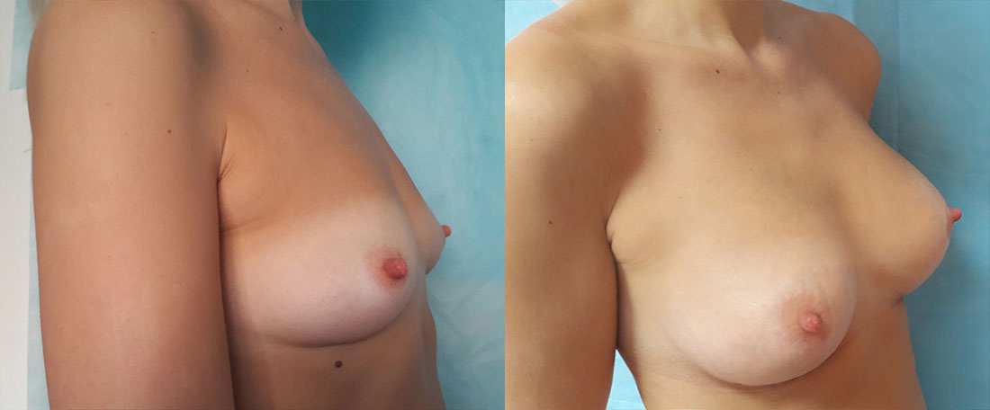 Пластические операции грудей