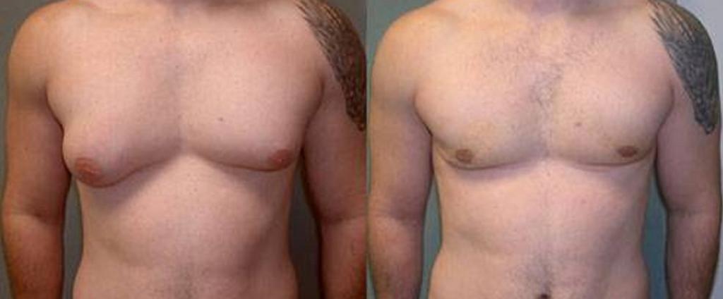 Как убрать грудной жир у мужчин в домашних условиях