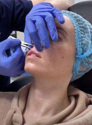 операция по увеличению губ - фото