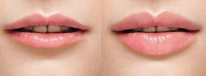 увеличение губ - изображение