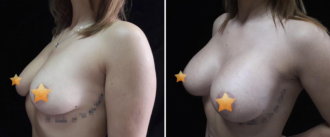 Увеличение и коррекция груди фото
